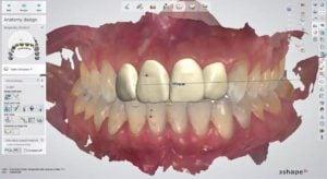 3Shape Dental Systems