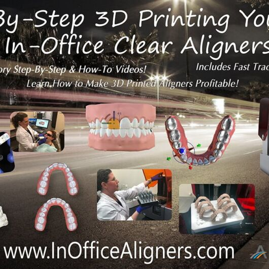Step-by-Step 3D Printing Your Own In-Office Clear Aligners