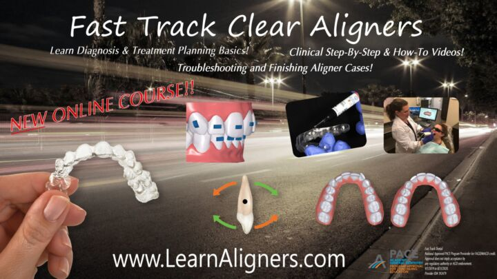 Fast Track Clear Aligners