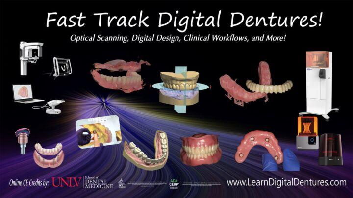 Fast Track Digital Dentures