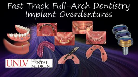 Fast Track Full-Arch Dentistry - Implant Overdentures