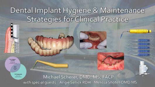 Dental Implant Hygiene & Maintenance