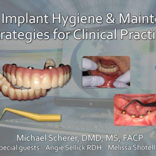 Dental Implant Hygiene & Maintenance