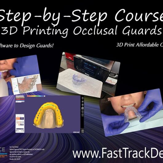 Step-by-Step Digital Occlusal Guards