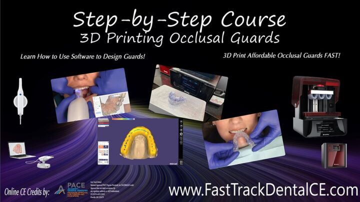 Step-by-Step 3D Printing Occlusal Guards