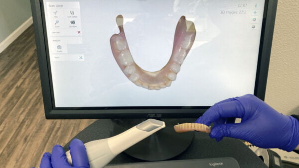 3Shape Trios Scan of 52-Year Old Denture