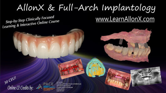 AllonX & Full-Arch Implantology