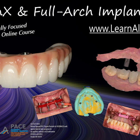 AllonX & Full-Arch Implantology